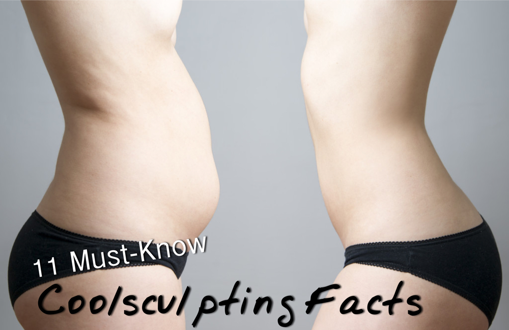 coolsculpting facts for weight loss - ad