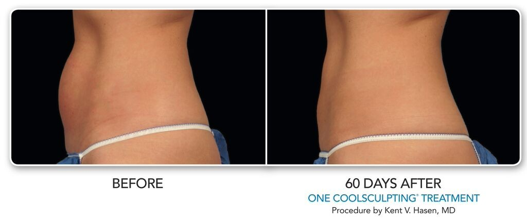 coolsculpting for weight loss on stomach