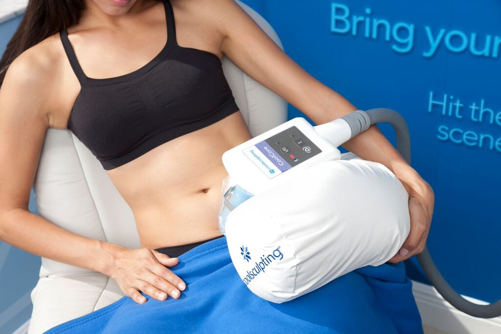 coolsculpting non invasive fat loss procedure
