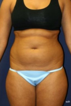 How to find the best plastic surgeons online - Liposuction