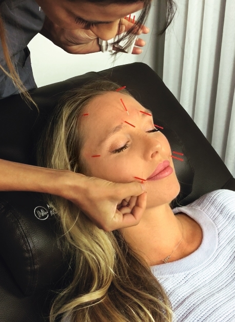 cosmetic acupuncture - nubry